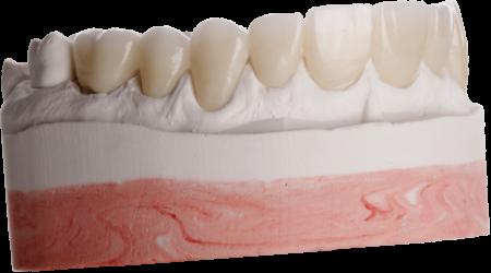 Excelência Clínica em Reabilitação Oral Estética